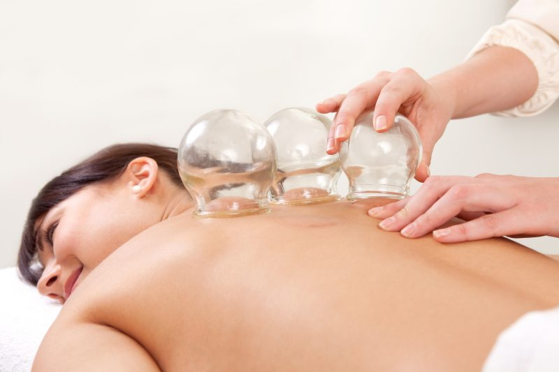 Cupping Therapy - why you need to try it! - ShanTherapy